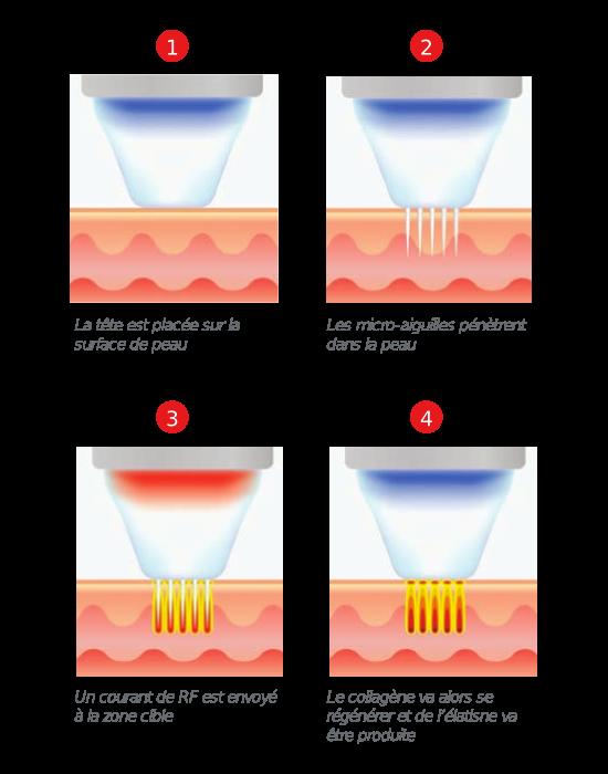 radiofréquence intradermique